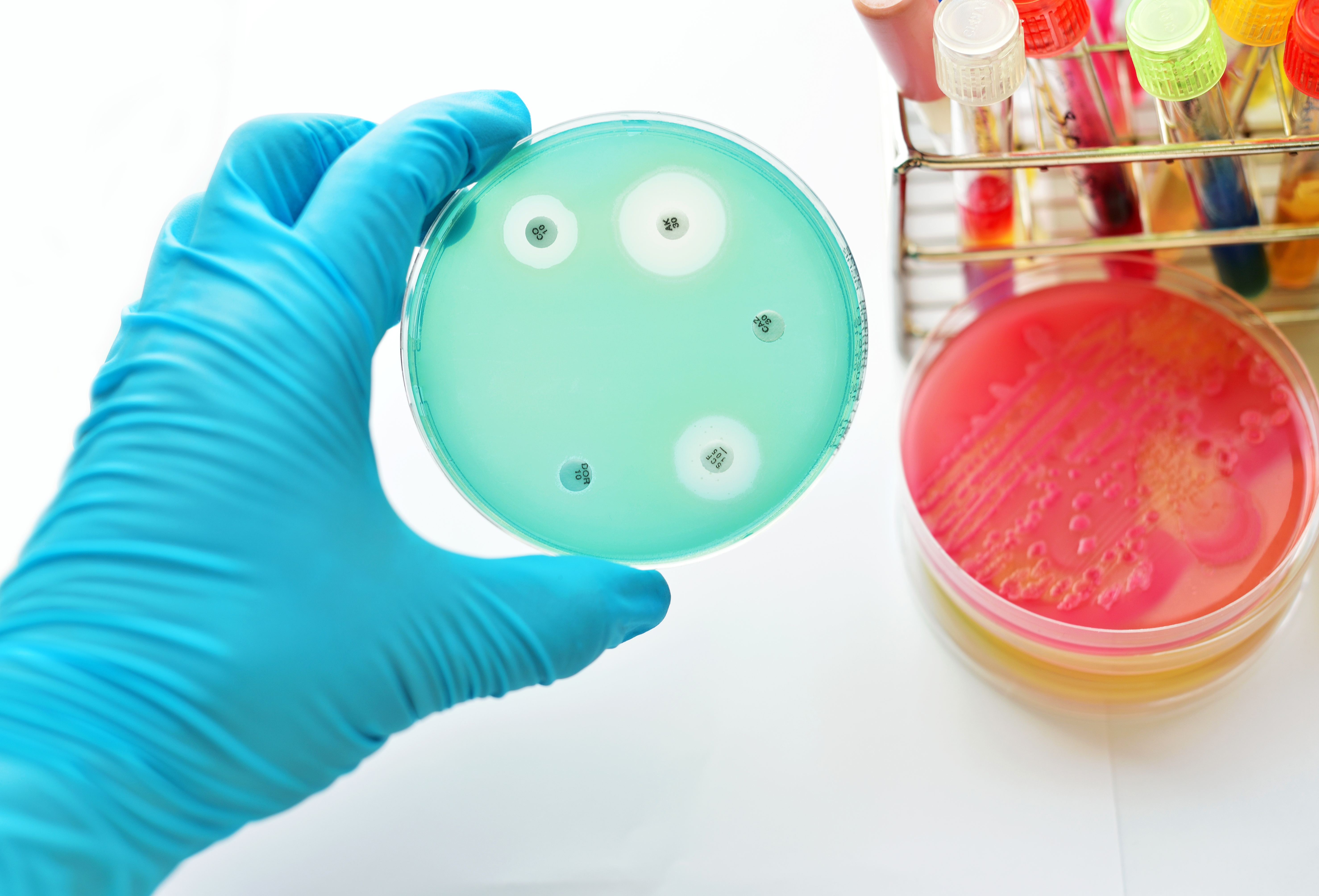 Antibiotic resistance in a global challenege that must be met with a global response